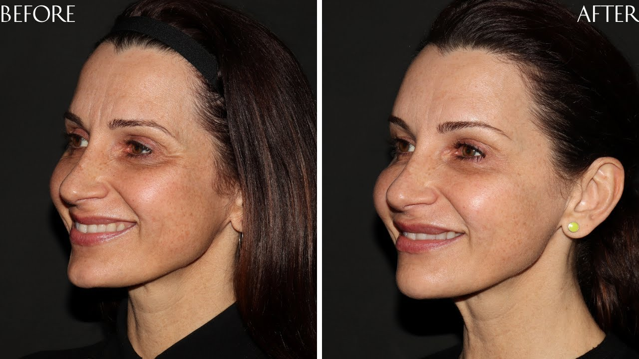 Preview of Dermal filler and Botox Cosmetic ® : Lisa 47 y.o.