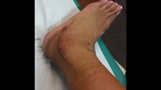 My worst injury