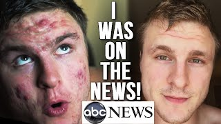 I'M ON TV EXPLAINING MY ACNE CURE! (ABC, DailyMail, etc.)