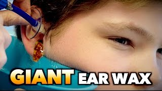 GIANT EAR WAX REMOVAL! | Dr. Paul