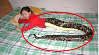 Girl Born Half Human Half Snake | Real Or Fake?
