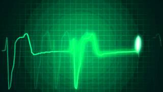XXI Century Cardiology - ECG animations