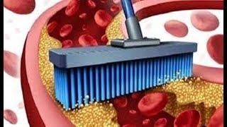 ✅  Artérias mais limpas e imunidade mais forte - tome 4 colheres deste remédio natural!