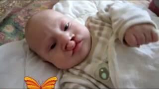 Maria Megre/Улыбки моих детей/Врожденная патология: расщелина верхней губы и нёба