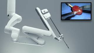 Robotic Thoracic Surgery: Intro Video