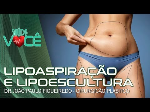João Paulo Figueiredo - Galeria de fotos