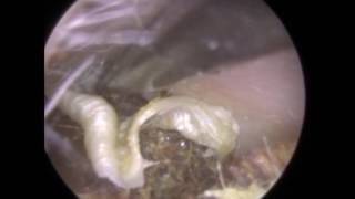 Tug of War between Dry Ear Wax and Ear Hook - Mr Neel Raithatha (The Hear Clinic)