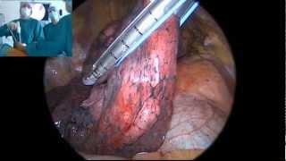 VATS-Lobectomy: Upper Lobe of Right Lung
