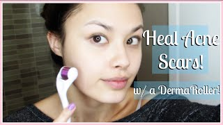 How to Treat Acne Scars (My Before and After) and Improve Your Skin's Appearance