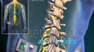 3D Medical Animation | Spinal stimulator surgery