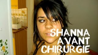 SHANNA KRESS - AVANT CHIRURGIES !