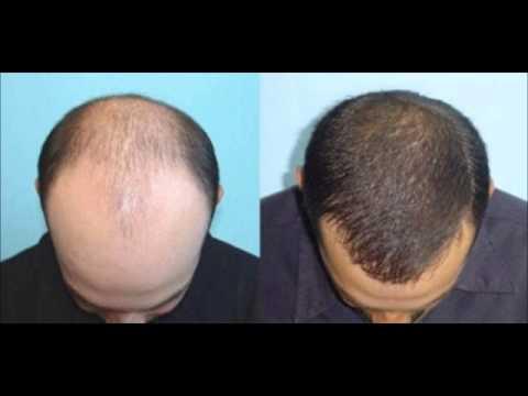 Saç nasıl ekilir saç ekimi fiyatları istanbul saç ekimi merkezleri +90 444 7 633