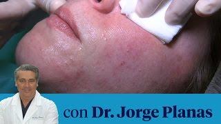 Cómo eliminar las cicatrices del acné