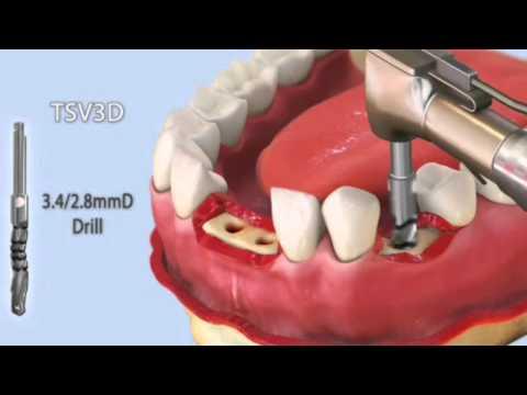 Alt çene iki santral ve küçük azı boşluklarına implant yerleştirilmesi animasyonu