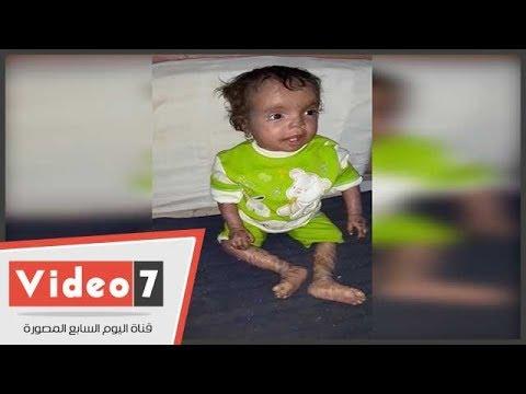 """""""كارما"""".. طفلة صعيدية تعاني من الآلام والقهر المجتمعي بسبب مرض جلدي نادر منذ ولادتها"""