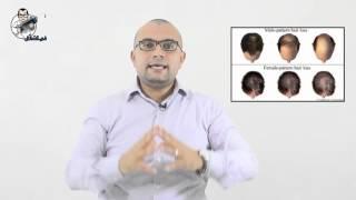 تساقط الشعر والصلع الوراثي الأسباب والعلاج