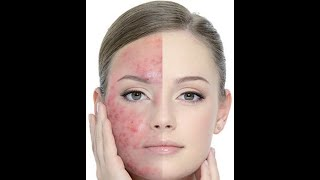 can ovarian cysts cause acne , can early pregnancy cause acne , fucidin cream acne review