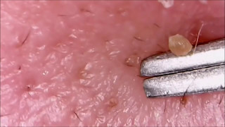 Worst Pops!  Cysts, Zits, Pimples & Blackhead Popping