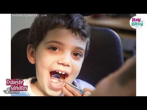 Tartru la copii: Cauze si tratament