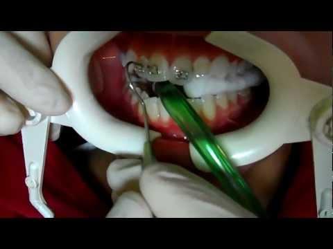 diş teli nasıl takılır? Dr. Özgür Zileli Matchett.Ortodontist.