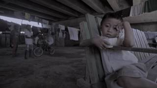 Watch Dexter's story and be informed about Malnutrition.