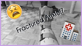 I fractured my ankle?!   vlog