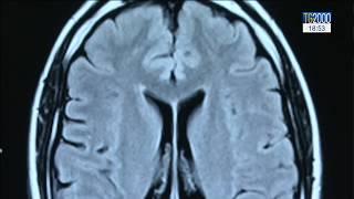Tumori al cervello: l'Istituto nazionale tumori Regina Elena in prima linea