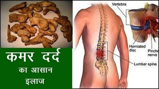 कमर दर्द का रामबाण घरेलु नुस्खा | Health Tips In Hindi.