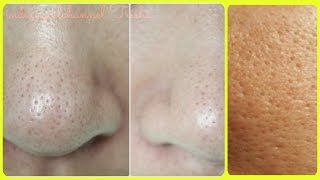 Get Rid of Large Pores/ 4 best remedy/ Get Smooth, Tighter,Younger Looking Skin