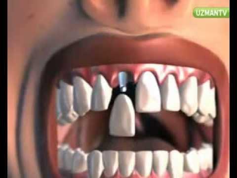 Diş İmplantının Avantajları Nelerdir?