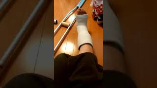 one normal day in a leg cast SLC