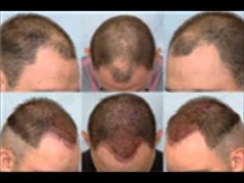 Ankara istanbul antalya izmir saç ekimi merkezleri saç ekimi klinikleri +90 444 7 633