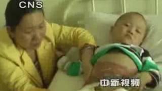 留园网视频新闻:4岁男童生殖器被烧可能变阴阳人
