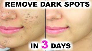 In 3 DAYS - Remove DARK SPOTS, BLACK SPOTS & ACNE SCARS | PrettyPriyaTV