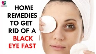 Home Remedies to Get Rid of a Black Eye Fast - Health Sutra