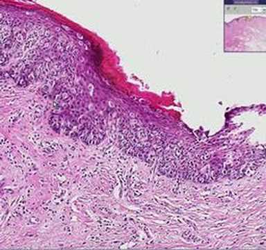 Histopathology Vulva--Paget disease