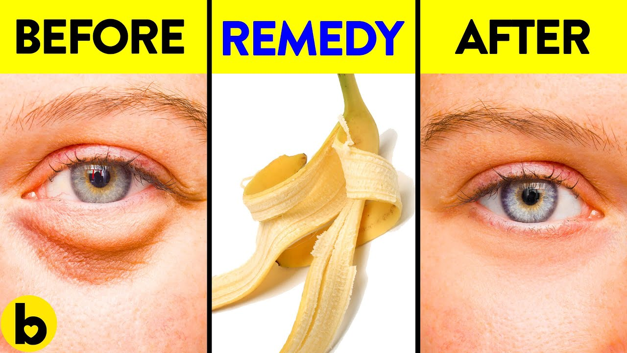 13 Surprising ways to use Banana Peels for Everyday Life