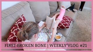 FIRST BROKEN BONE | WEEKLY VLOG #21