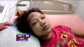 Majikan Tega Setrika Perut Pembantu Rumah Tangganya   NET16