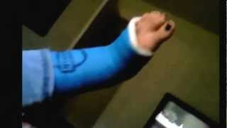 Hanging out with my Blue Cast