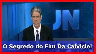 Novo Produto para Calvice Comercializado no Brasil | INÉDITO!