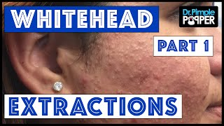 Whitehead Extractions TNTC, Session 3 Part 1 of 2