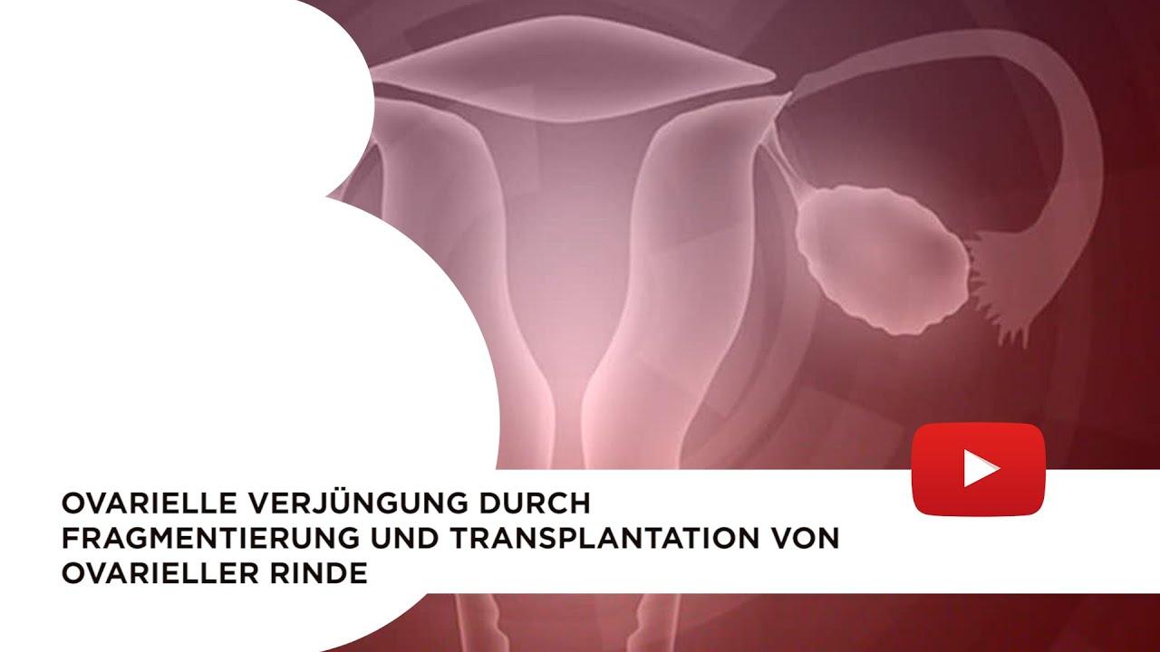 Ovarielle Verjüngung durch Fragmentierung und Transplantation von ovarieller Rinde