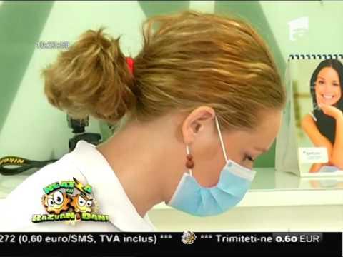 Sigilarea dentară, metoda modernă de prevenire a cariilor