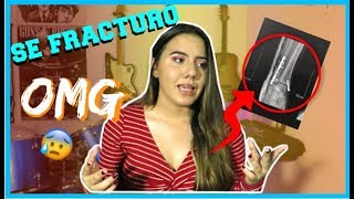 ME FRACTURE UNA PIERNA 😰💉 - STORYTIME | Laura Quintana