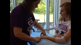 Live: Watch us put a cast on a child's arm at our Delafield Clinic