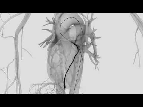 How is Coronary Angiography performed?