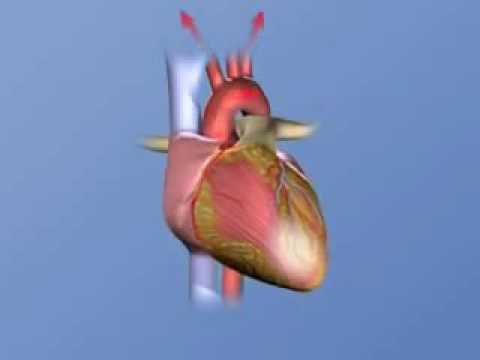 How heart attack is caused?