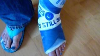 Blue short leg cast and polish nail