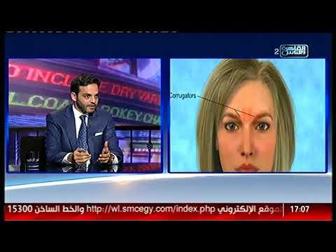 الناس الحلوة | فنيات استخدام الفيلر فى عالم التجميل مع دكتور محمد أشرف المليجى
